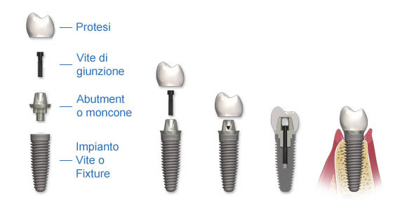 Quanto costa impiantare un dente all'estero ed in Italia?