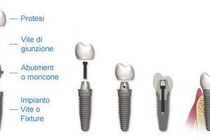 Quanto costa impiantare un dente all'estero ed in Italia?